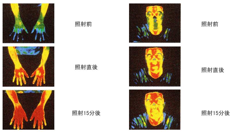 スーパーライザーの照射によって15分後の体温が上昇している様子