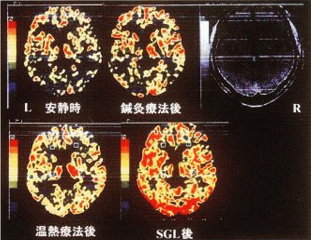 脳の血流量の増加