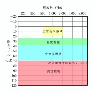 聴力と難聴のレベル30ー40デシベルが軽度難聴、40-70デシベルを中等度難聴、70デシベルを高度難聴