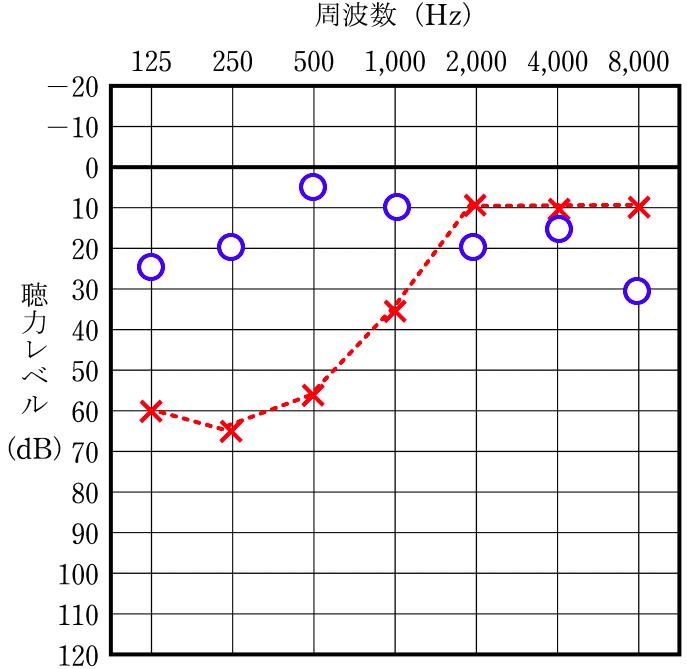 左耳の低音部(125,250,500ヘルツ)で60デシベルまで低下