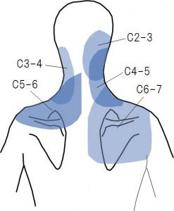 頚椎椎間関節の痛み