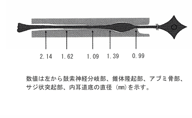 顔面神経管の太さについて示した解剖図、左から鼓索神経分岐部直径2.14mm、錐体隆起部1.62mm、アブミ骨部1.09mm、サジ状突起部1.39mm、内耳道底0.99mm