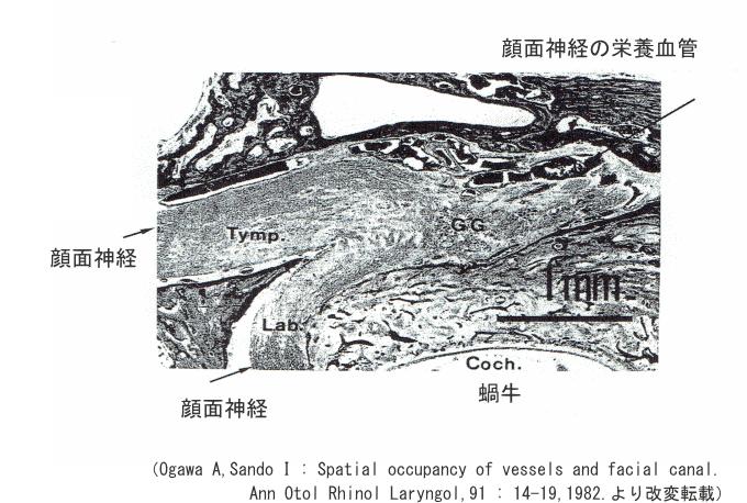 顔面神経管内の顔面神経と栄養血管の走行を示した解剖図、直径1mm前後の顔面神経管内に神経と血管が収まっている