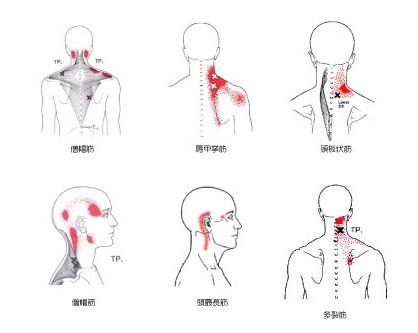 甲骨 左 痛み 肩 内側