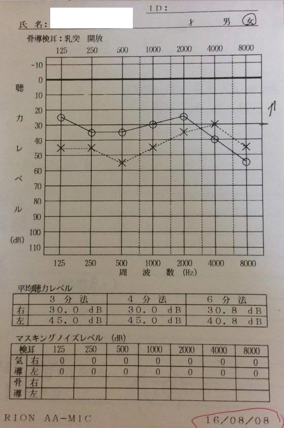 右の聴力は改善が早く30デシベルに聴力が並び、左は前回よりも高音部での聴力の回復を認める