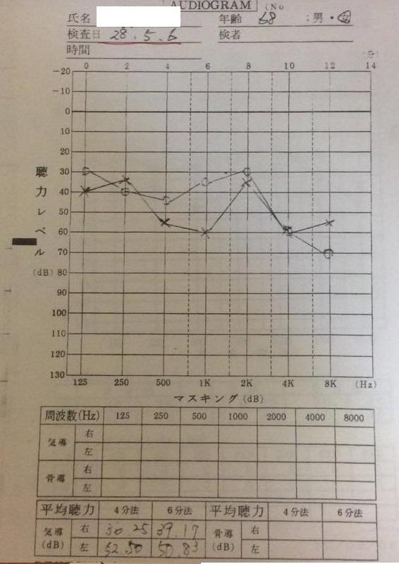 耳鼻科聴力検査にて、両耳とも30-60デシベル範囲で聴力低下が起こり、左の500-1000ヘルツ、4000-8000ヘルツで60デシベルまで聴力低下
