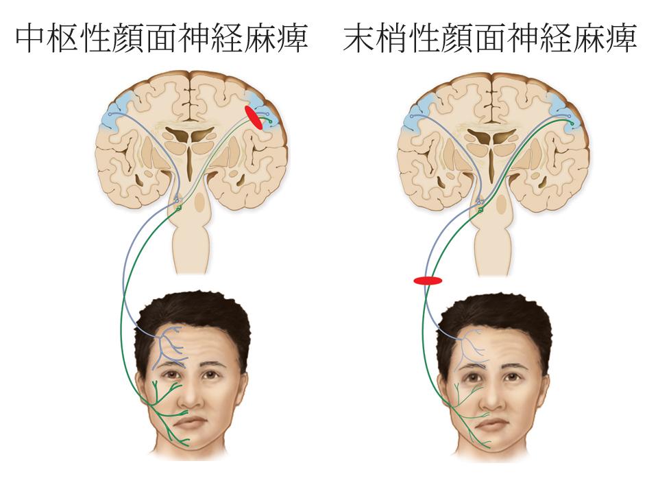 中枢性顔面神経麻痺と末梢性顔面神経麻痺の違い