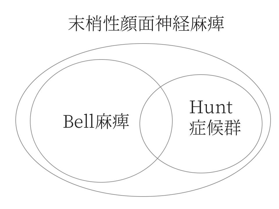 末梢性顔面神経麻痺のBell麻痺と、Hunt症候群の関係説明