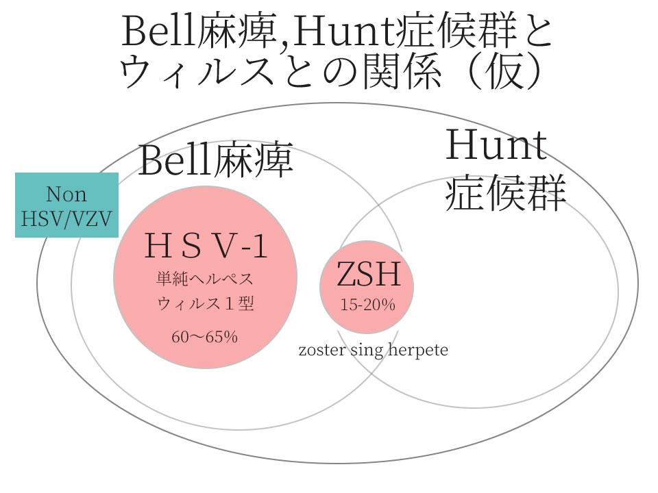 Bell麻痺とHunt症候群とウィルスとの関係(仮)