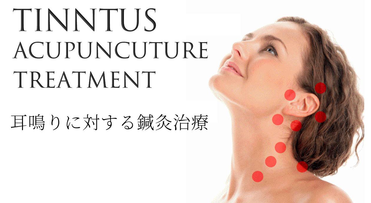 耳鳴りに対する鍼灸耳周辺や頚への施術部位を表現