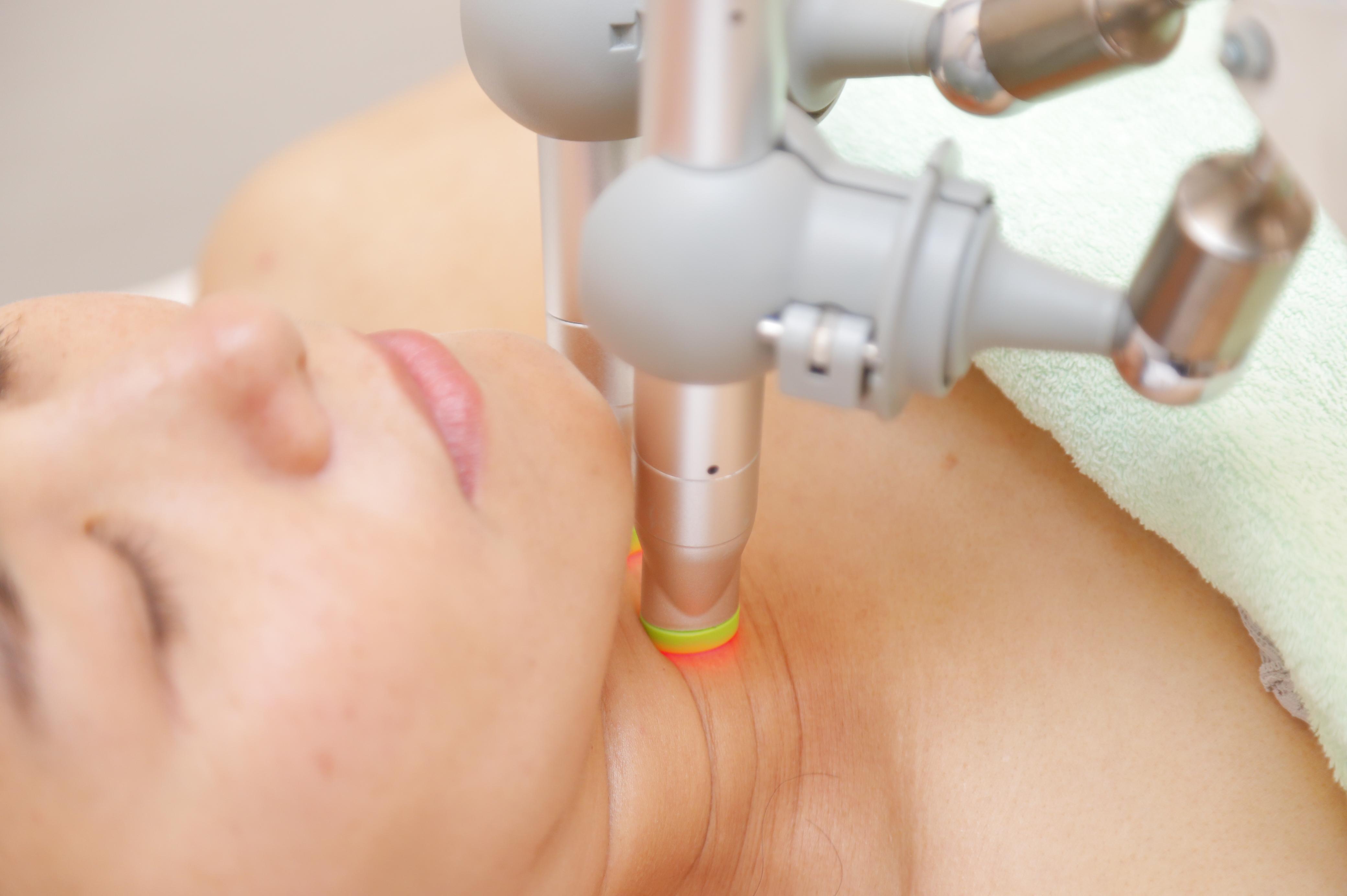 スーパーライザーを頚部の正常神経節に照射する様子