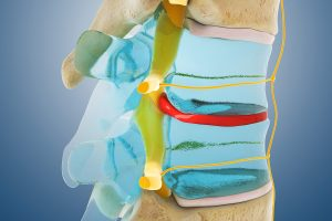 椎間板ヘルニア説明図