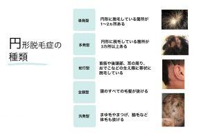 脱毛の分類説明図症状や脱毛の形状により名称が異なる